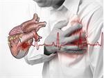 Nhồi máu cơ tim và những điều bạn nên biết