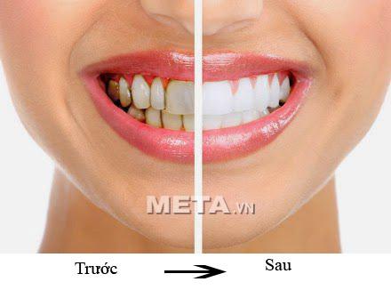 Đèn làm trắng răng Lanaform Whitening Flash sẽ mang lại hiệu quả làm trắng thật bất ngờ.