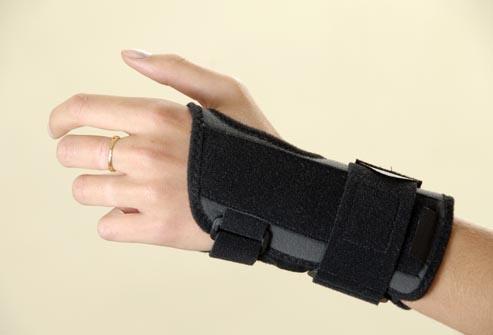 điều trị hội chứng ống cổ tay