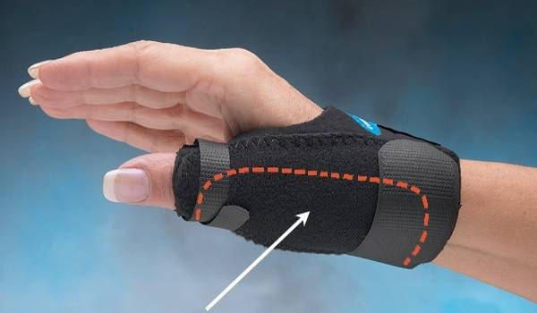 điều trị đau cổ tay do hội chứng De Quervain