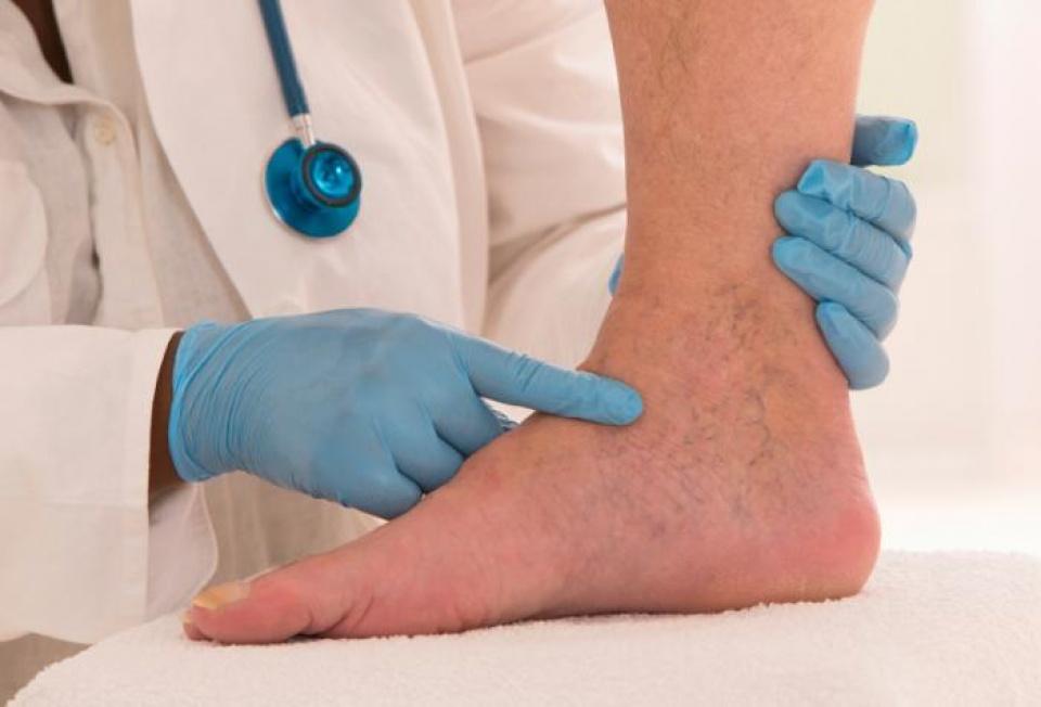 Phù bạch huyết nguyên phát thường khởi phát rất sớm
