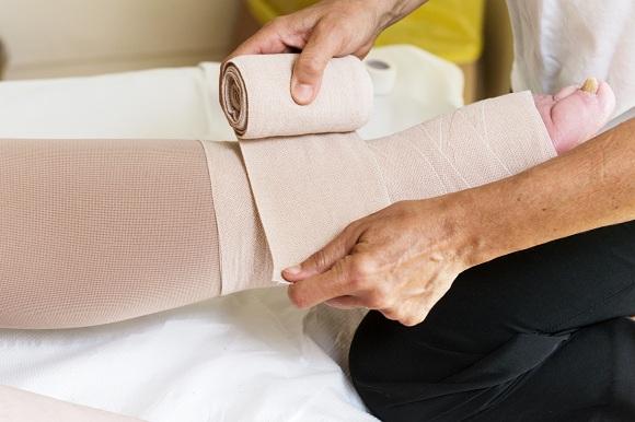 Vớ y khoa là sản phẩm thường được sử dụng để điều trị phù mạch bạch huyết nhẹ và vừa