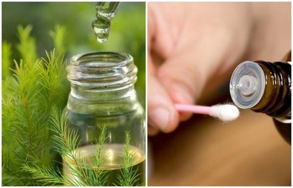 Người bị mụn có thể lấy tăm bông chấm tinh dầu tràm lên để vết mụn nhanh khô
