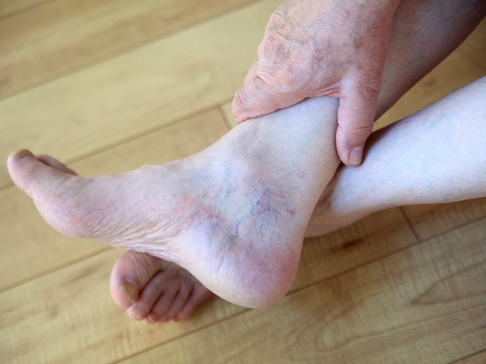 Giãn tĩnh mạch chân là một bệnh rất phổ biến hiện nay