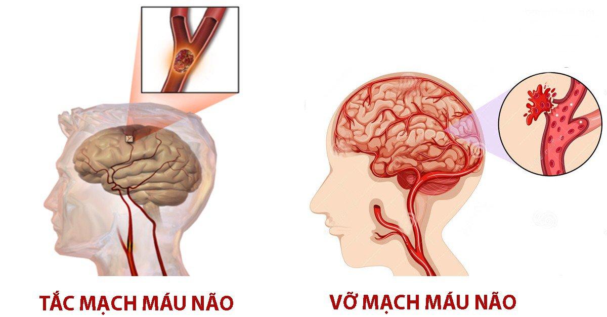 Nguyên nhân gây tai biến mạch máu não thường là do tắc, vỡ mạch máu