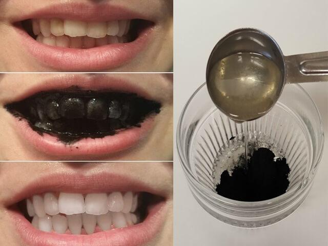 Cách làm trắng răng hiệu quả bằng than hoạt tính