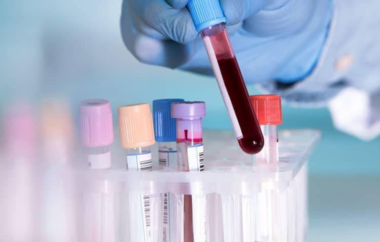 Xét nghiệm là cách nhận biết nhóm máu O nhanh nhất