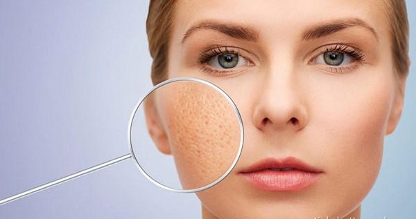 6 Mặt nạ se khít lỗ chân lông cho da nhờn hiệu quả, dễ thực hiện tại nhà