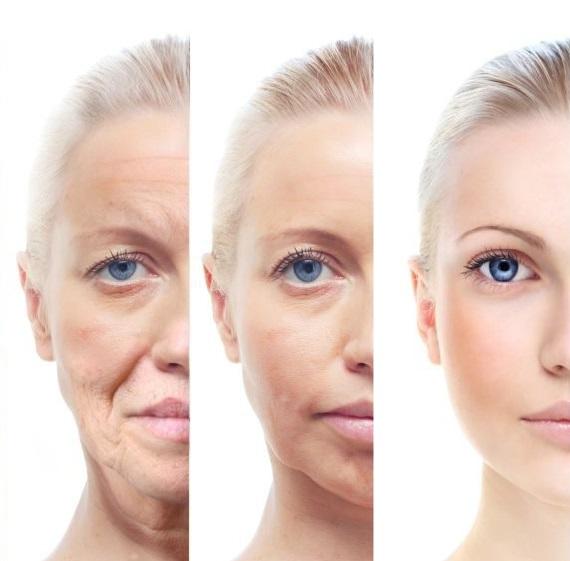 Máy nâng cơ mặt có thể giúp da của bạn săn chắc hơn và giảm nếp nhăn hiệu quả