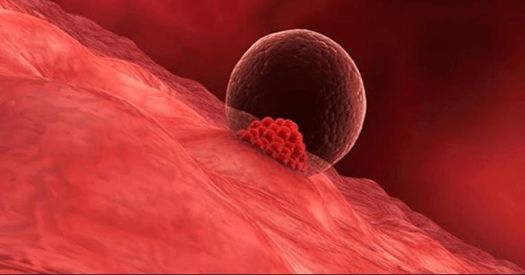 Mang thai không nghén do phôi làm tổ muộn trong lòng tử cung