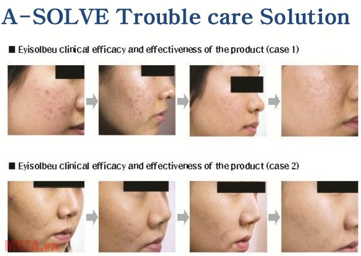 Làn da của bạn sẽ được cải thiện khi sử dụng bộ tinh chất dưỡng Skinlovers hằng ngày.