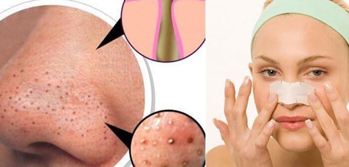 cách trị mụn đầu đen ở mũi tại nhà nhờ mặt nạ từ nguyên liệu đơn giản